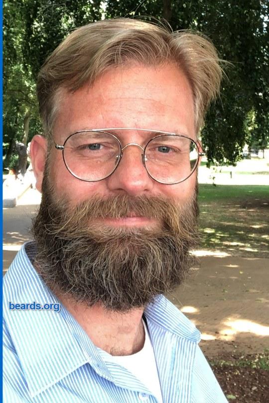 William's winning beard, gallery photo 4