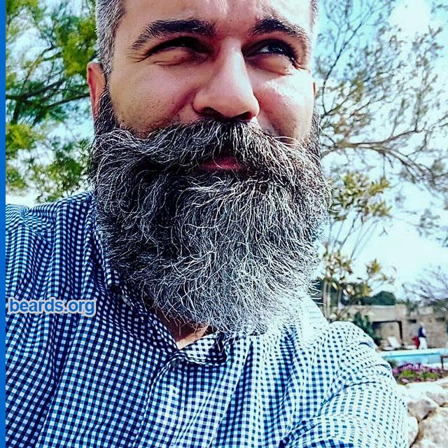 Jimmy's bigger beard.