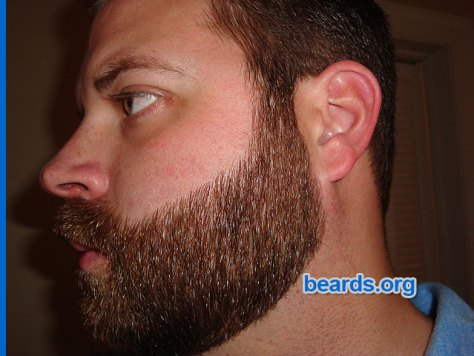 Repair beard cheek line: new cheek line succes