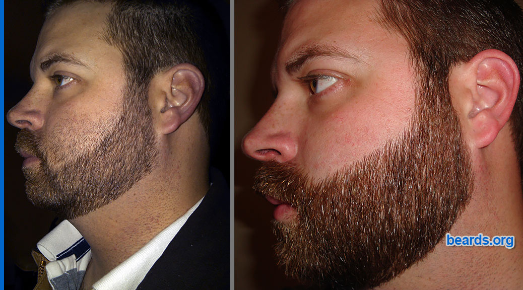 featured image for repairing beard cheek line