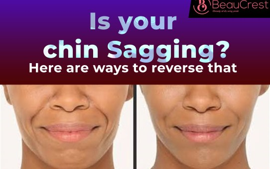 "Is Your Chin Sagging? Here are 15 Ways to Reverse ""Double Chin"""