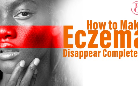 How to Make Eczema Disappear Completely
