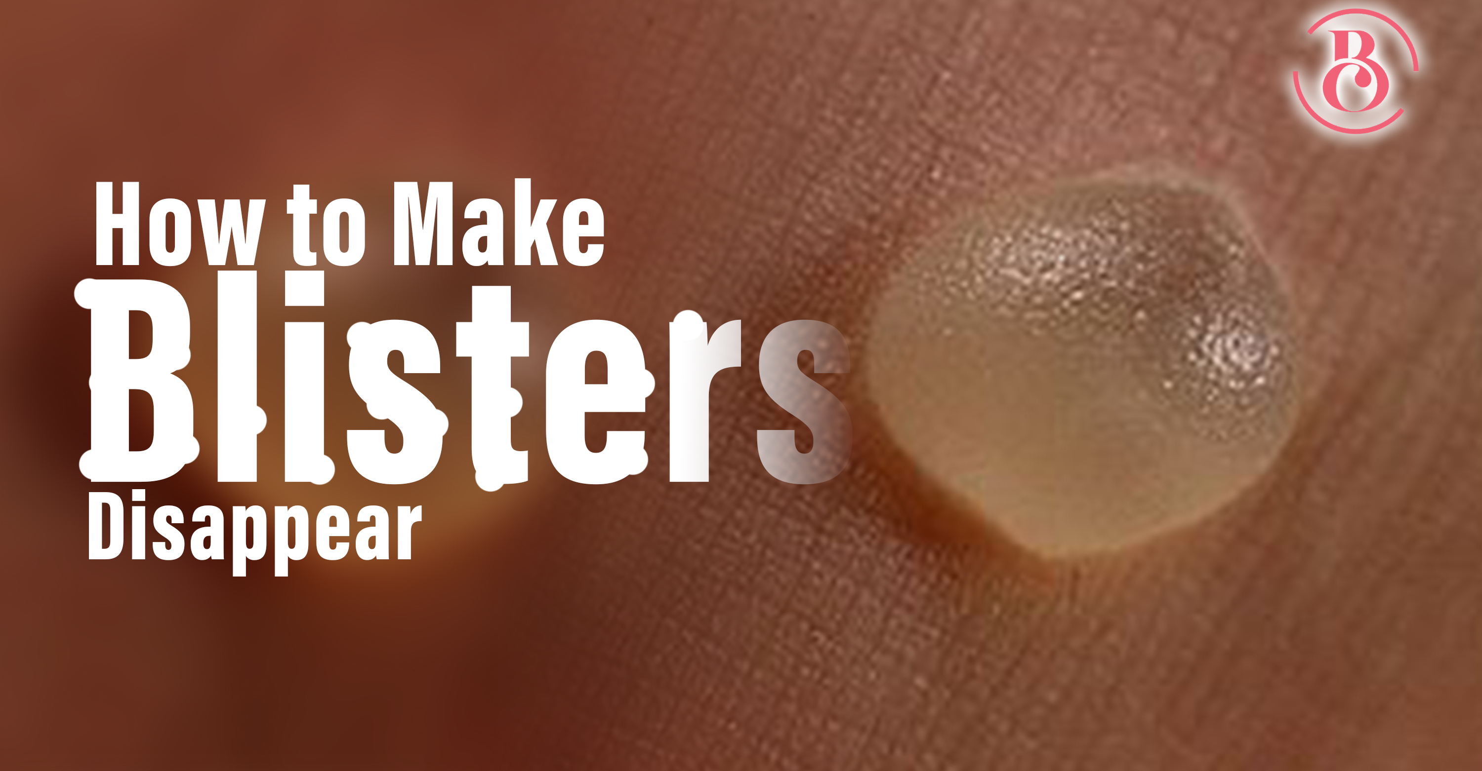 4 Sure Ways to Make Blisters Disappear