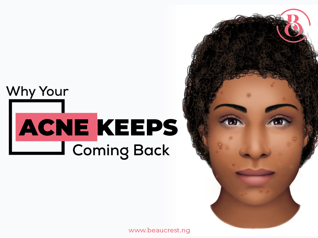Why Your Acne Keeps Coming Back