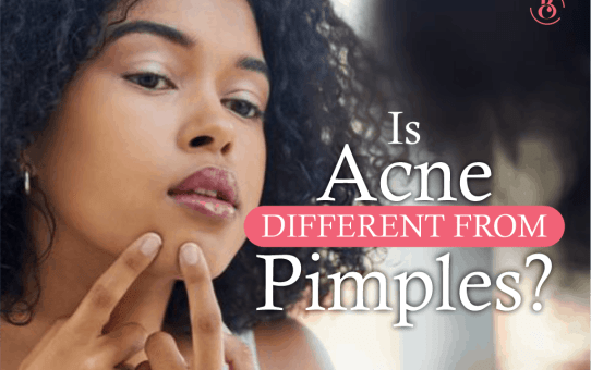 Is Acne Different from Pimples?