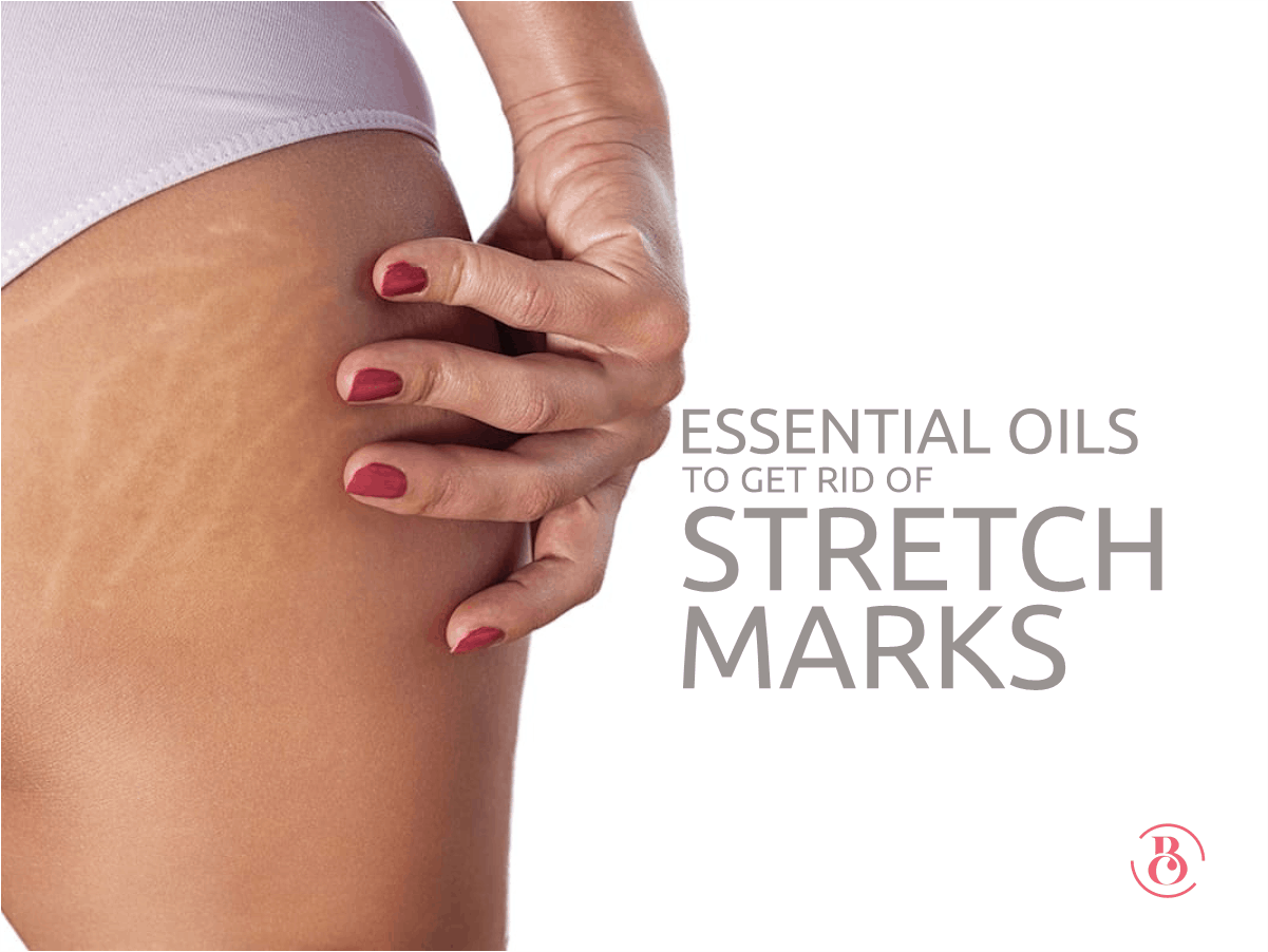 8 Essential Oils to Get Rid of Stretch Marks