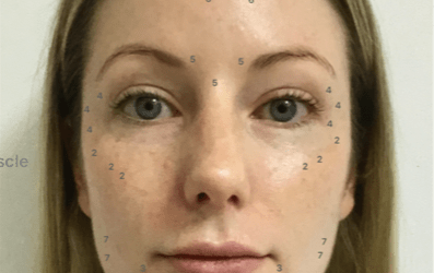 Mystery Shop May – Cosmetic Nurse Sally – Injectable Consultation