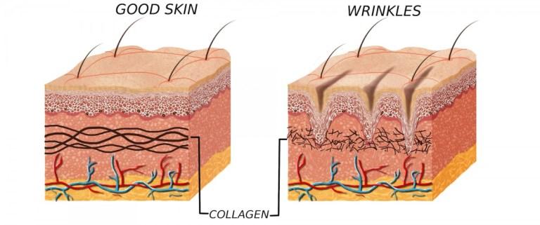 BEAUTIFUL MORNING collageen-768x321 wat doet collageen voedingssupplement spuiten skincare injecteren creme collageen beautydrankje