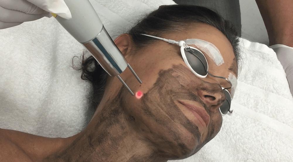 Laser Carbon peel – Hollywood Peel