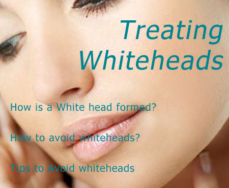 Whiteheads---Diverse Beauty