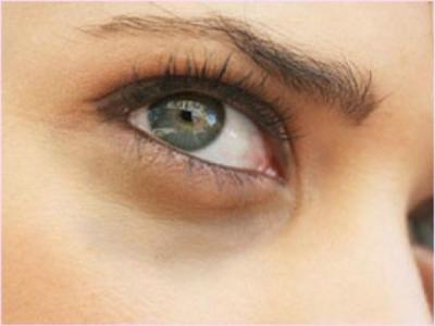 سواد تحت منطقه العينين