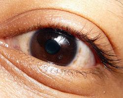 التخلص من تورم اسفل العين