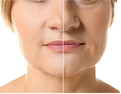 redukcja zmarszczek osocze Beauty Address