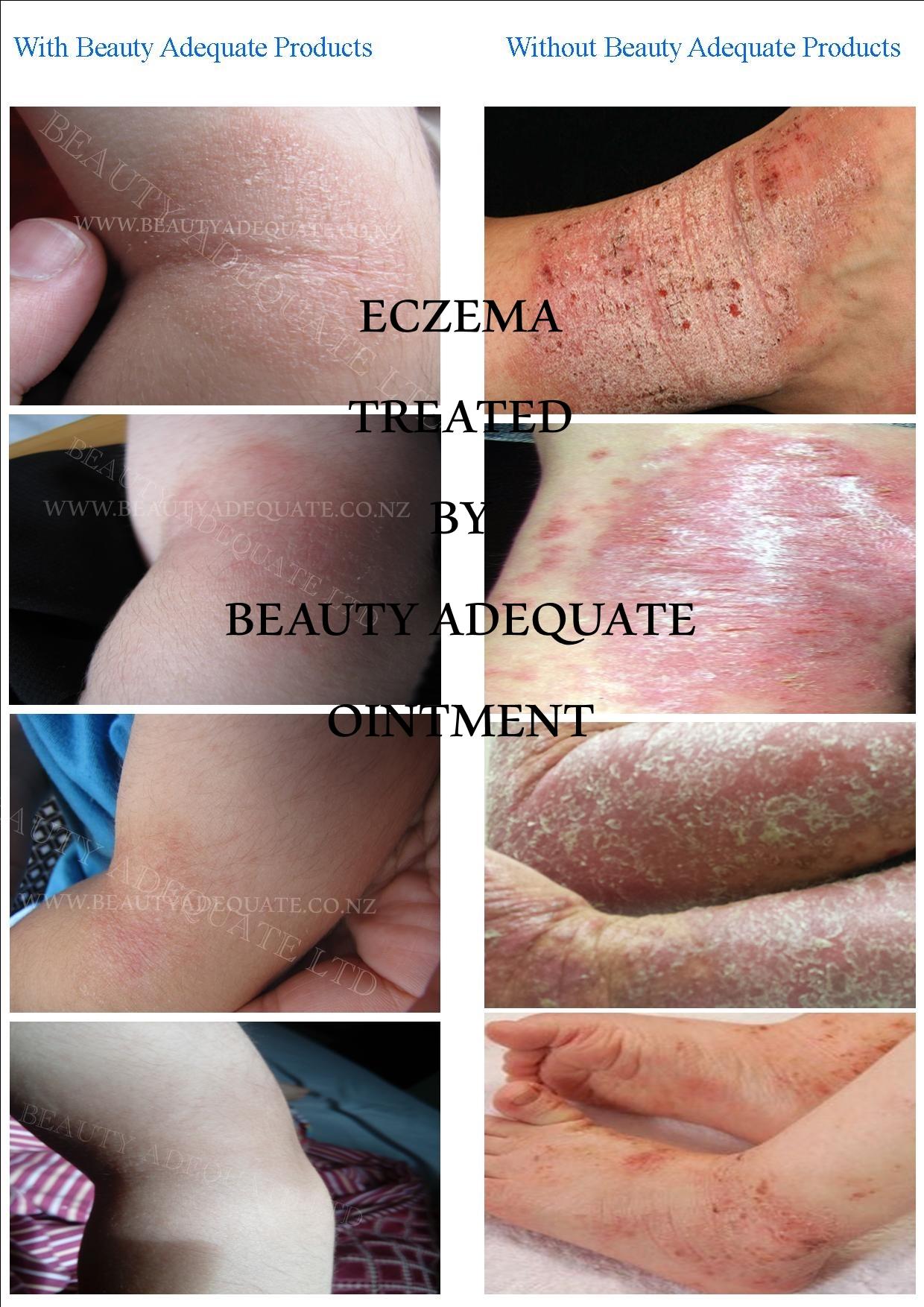 Eczema Ointment 30ml Beauty Adequate
