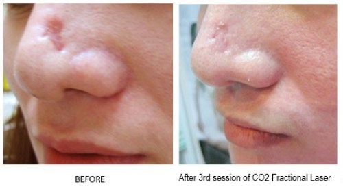 Fractional CO2 Laser Fraxel Beauty and Laser Clinic MANLY sydney northern beaches - fraxel