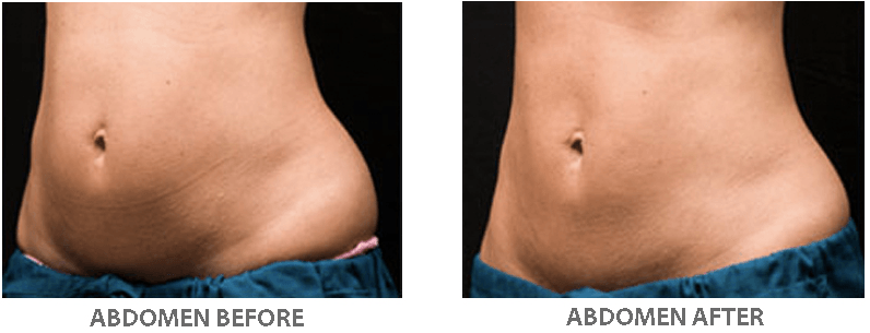 Fat freezing beauty and laser clinic manly love handles