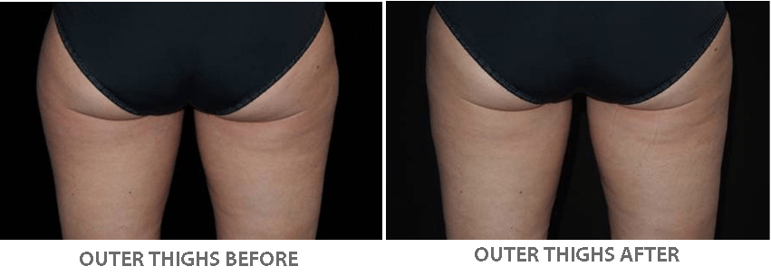 Fat freezing beauty and laser clinic manly leg