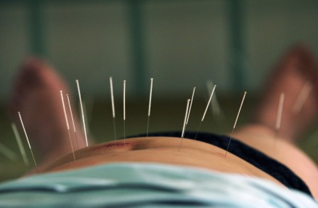 beauty and laser clinic - Acupuncture for Weight Loss SYDNEY
