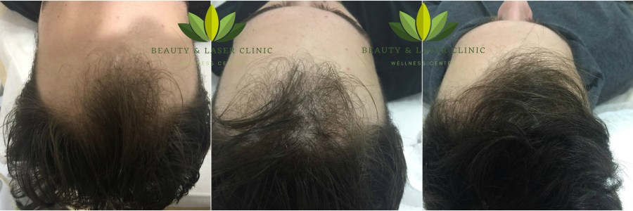 Micro needling Mesotherapy Hair loss Treatment