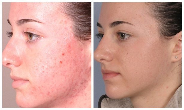 microdermabrasion beauty and laser clinic Before and after manly sydney