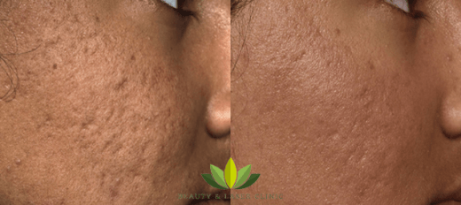 acne scar removal at beauty and laser clinic manly sydney