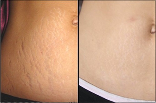 Get Stretch Mark Lazer Treatment  Pictures