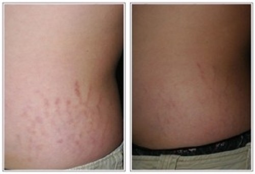 Fractional CO2 Laser for Stretch Marks - Beauty and laser clinic
