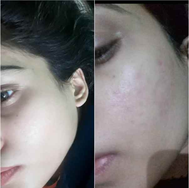 How I Got Rid of My Acne Scars