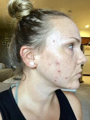 My Experience with Accutane for Adult Acne - Beauty and the