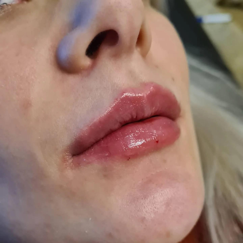 Lip Augmentation Wrexham