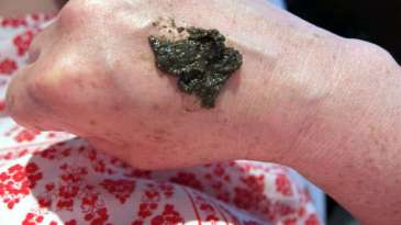 neoderma bio peeling kruiden