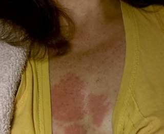 huid na compres