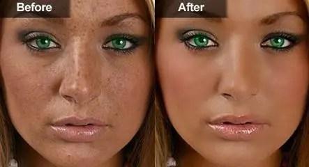 dermatologist skin bleaching foto bugil bokep 2017