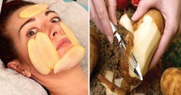 receita caseira para evitar olheiras