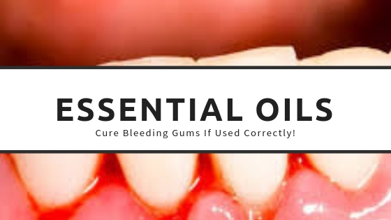 Using-essential-oils-for-bleeding-gums