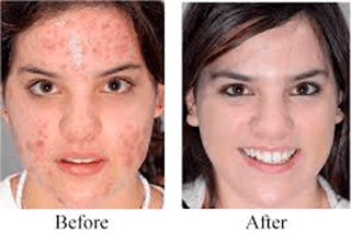 argan oil acne before and after 3