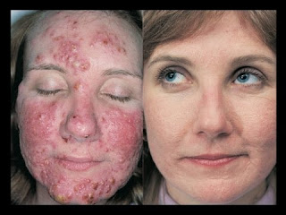 hydrogen peroxide acne before and after 1