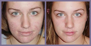 hydrogen peroxide acne before and after 2