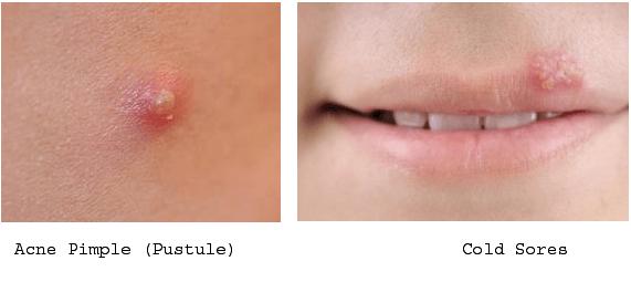 Herpes vs cold sore lip