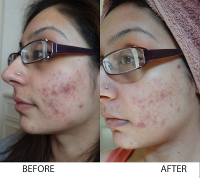 Turmeric For Acne Pimples Treatment And Scars Removal