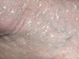 image - white bumps on feet