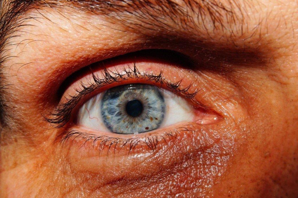 thinning lashes