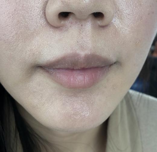 高雄紋唇推薦