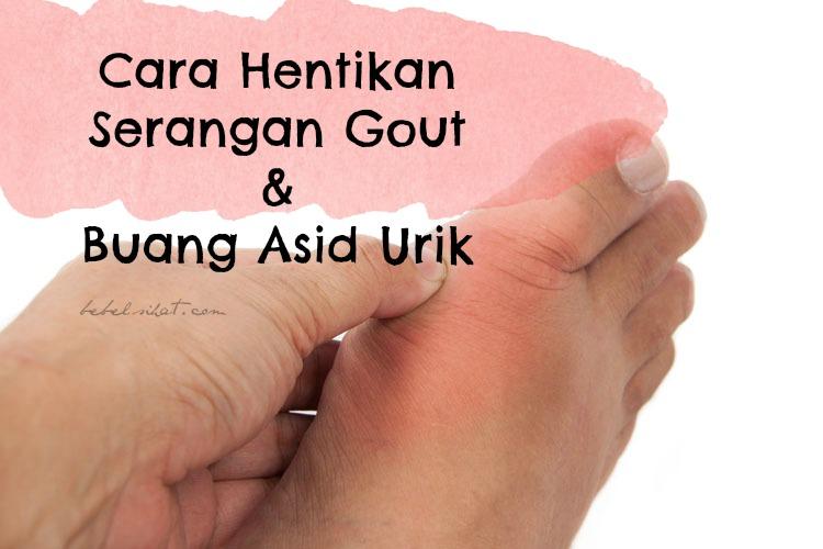 GOUT : Cara Hentikan Serangan Gout dan Buang Asid Urik
