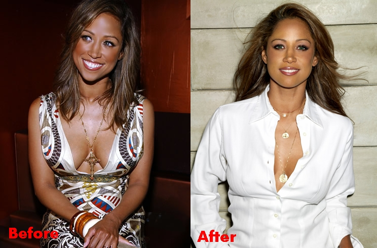 Stacey Dash Plastic Surgery And After