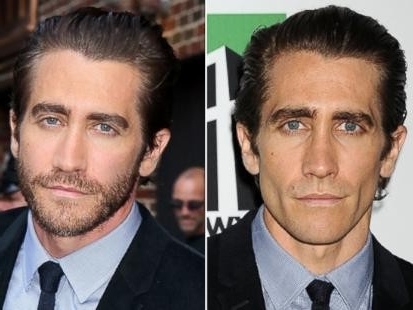 Jake Gyllenhaal Nose Job Plastic Surgery Before And After