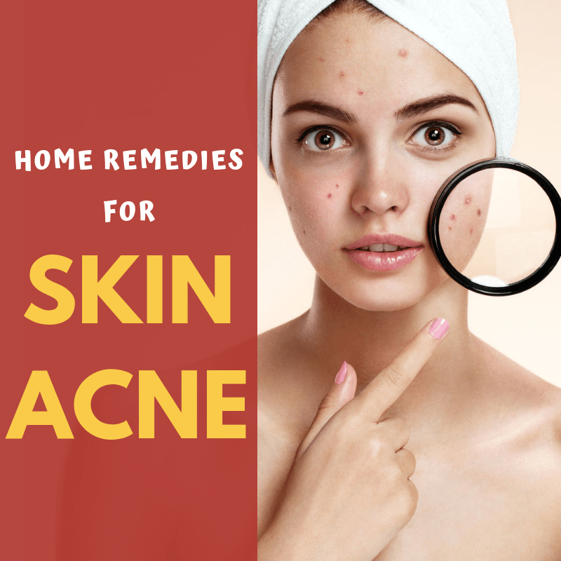 11 Home Remedies for Acne in 2020