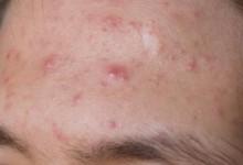 Types d'acné papule, ça commence à rougir !