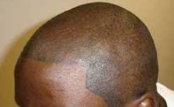 the latest hair loss treatment is tattooing