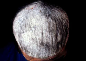 QampA White Sticky Substance On Scalp Causing Hair Loss